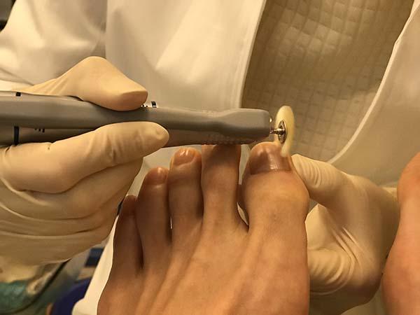【足を労わりましょう】趾の付け根の角質、タコ、魚の目、ガサガサの踵、ひび割れた爪、フットケアしてみませんか?